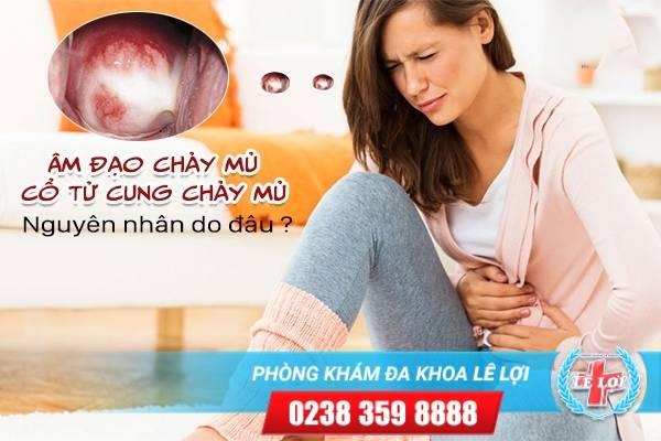 Âm đạo chảy mủ, cổ tử cung chảy mủ nguyên nhân do đâu, cách chữa thế nào?