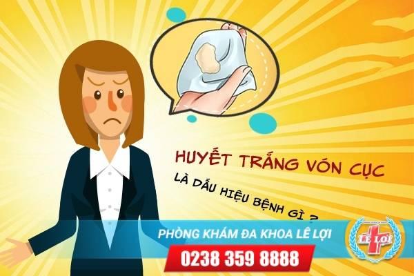 Huyết trắng vón cục là dấu hiệu bệnh gì ?