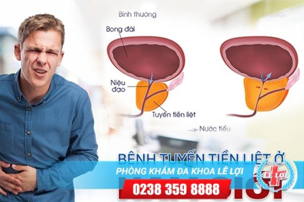 Dấu hiệu nhận biết những bệnh tuyến tiền liệt ở nam giới